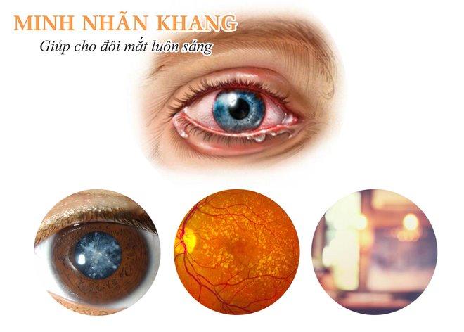 Viêm mắt có nên uống Minh Nhãn Khang không? Có và nên dùng sớm để cải thiện thị lực